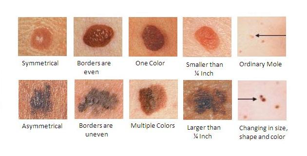 1444748080_melanoma-health-pic